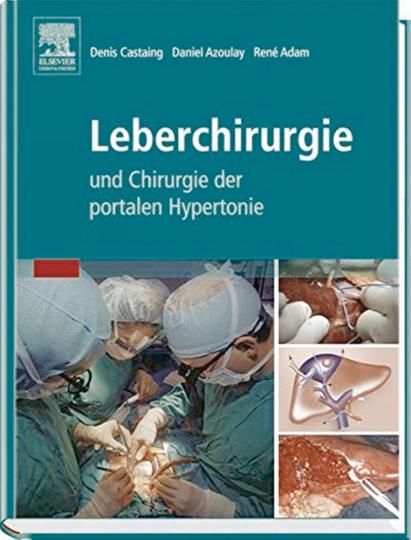 Leberchirurgie. Und Chirurgie der portalen Hypertonie